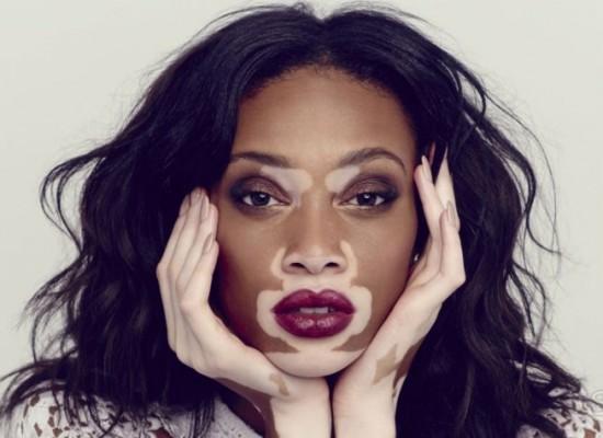 vitiligo iptc clinic dead sea